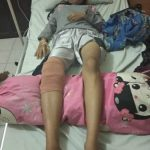 Ini Keterangan Polres Ketapang Terkait Korban Tertembaknya RD (16) Tahun